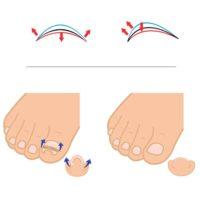 Пластины для вросших ногтей на ногах для коррекции