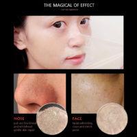 Средства против черных точек на лице с Алиэкспресс - место 2 - фото 3